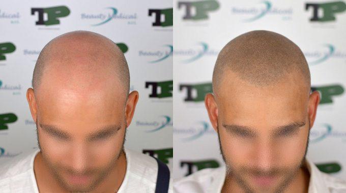 Tricopigmentazione Per Mascherare La Calvizie