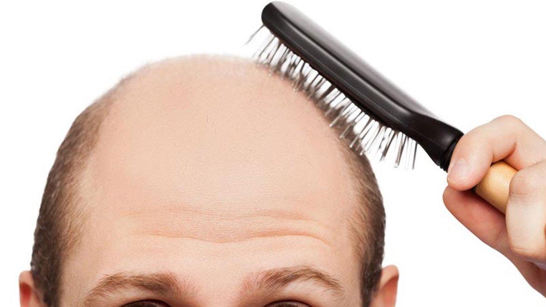 Perché l'alopecia colpisce soprattutto gli uomini e quali ...