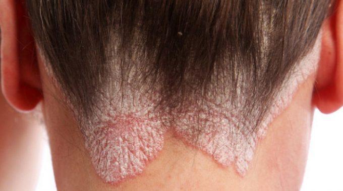 Alopecia Psoriasi