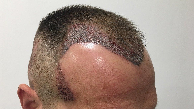 Quando dura l'effetto di un trapianto di capelli? Tutte le ...