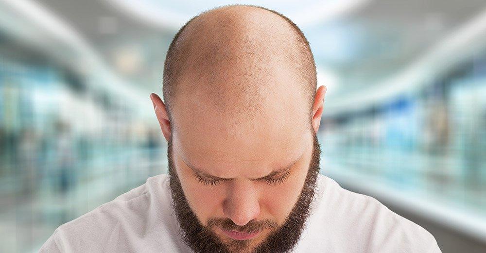 Rimedi contro la caduta dei capelli: quelli validi e ...