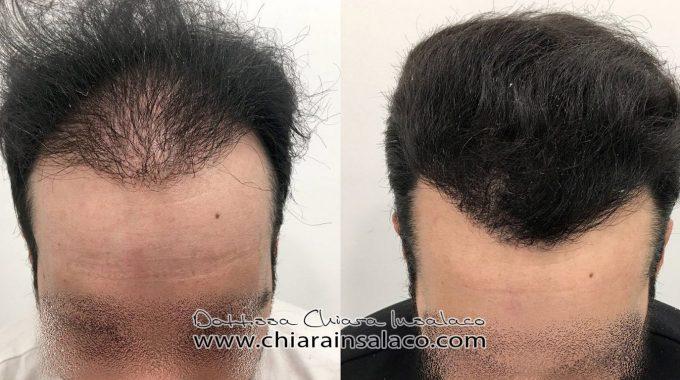 CASE N°14 – FUE Shaved Hair Transplant – 2500 Grafts