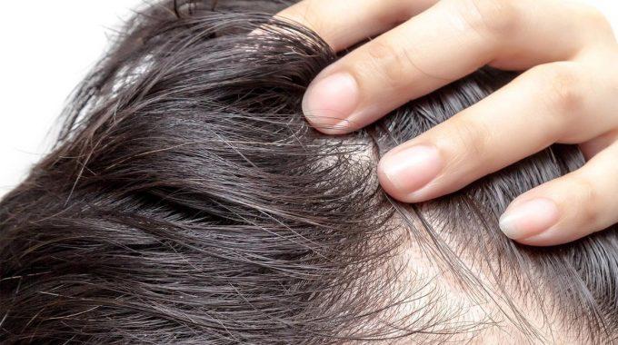 Stress-alopecia