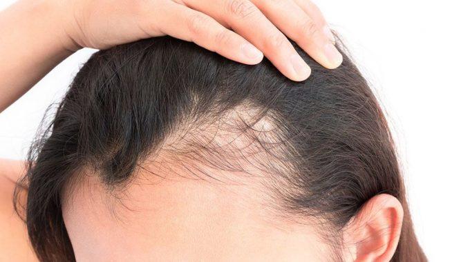 Temporary-hairloss