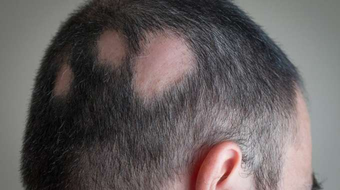 Hairloss-specialist