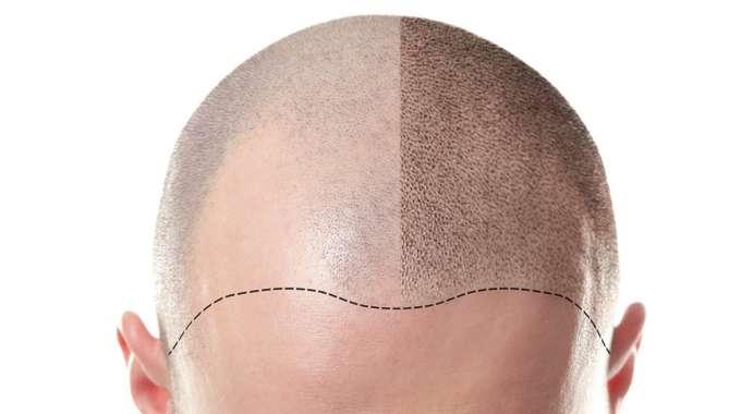 Hairloss-tricopigmentation